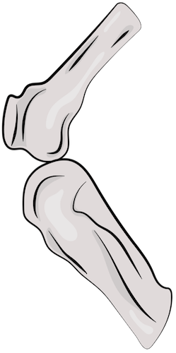 A drawing of two bones at the knee joint