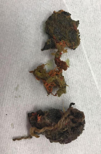 A pile of chewed up tennis ball that was removed from the inside of a dog's intestinal track